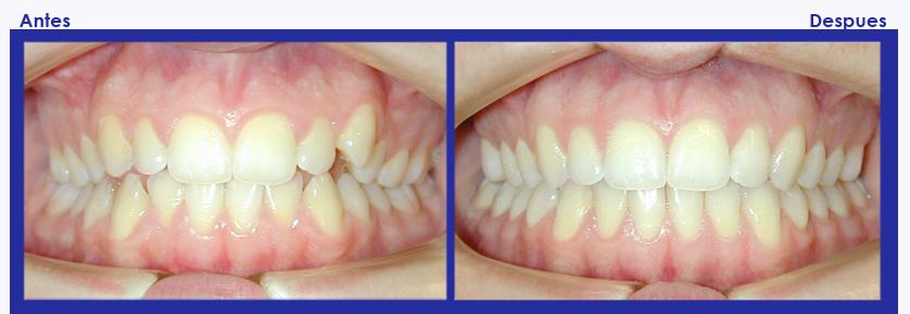 Resultados de ortodoncia